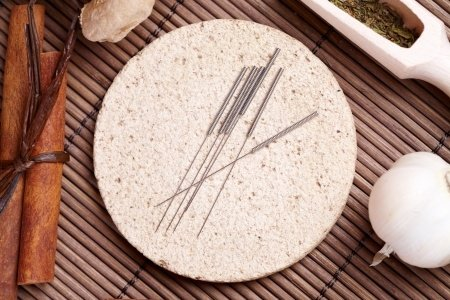 acupuncture_benefits